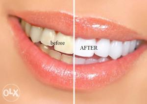 Olovka za izbjeljivanje zuba - Hello smile