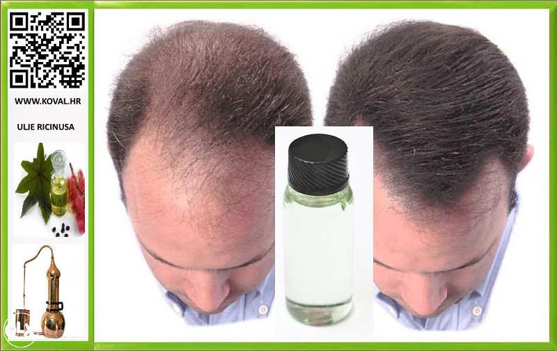 Ricinusovo Ulje Za Kosu Ljepota I Zdravlje Kozmetika Za Kosu Zenica Olx Ba